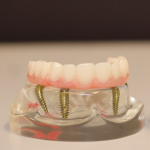 dental-implants-300x300
